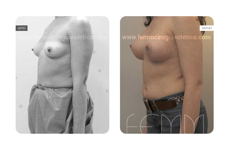 Aumento de pecho con prótesis anatómicas de 320cc · Caso 50 - Fotografía 3