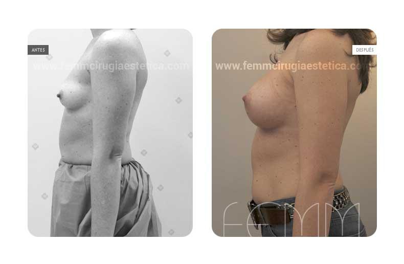 Aumento de pecho con prótesis anatómicas de 320cc · Caso 50 - Fotografía 4