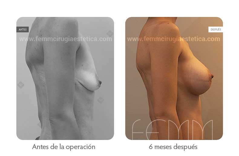 Aumento de pecho con prótesis anatómicas de 445cc · Caso 51 - Fotografía 1
