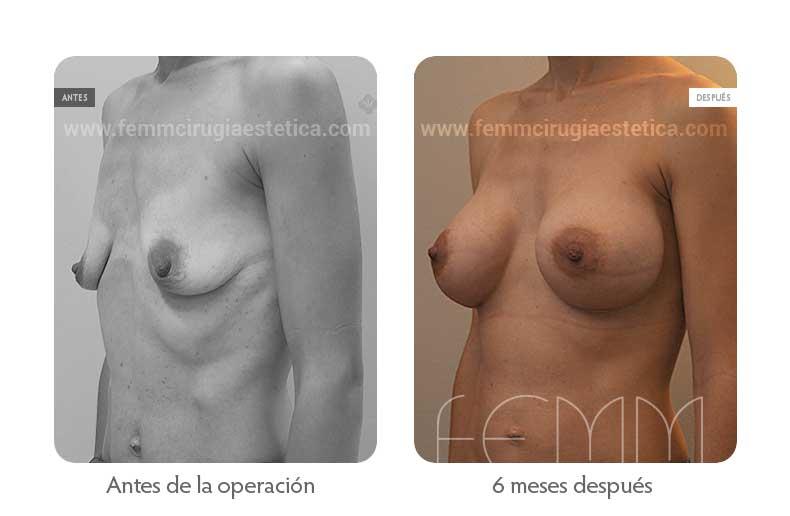 Aumento de pecho con prótesis anatómicas de 445cc · Caso 51 - Fotografía 4