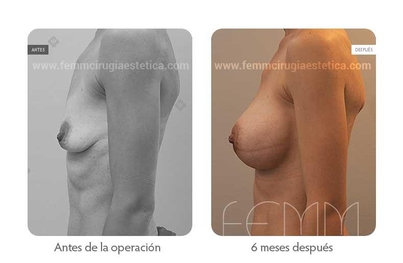 Aumento de pecho con prótesis anatómicas de 445cc · Caso 51 - Fotografía 5
