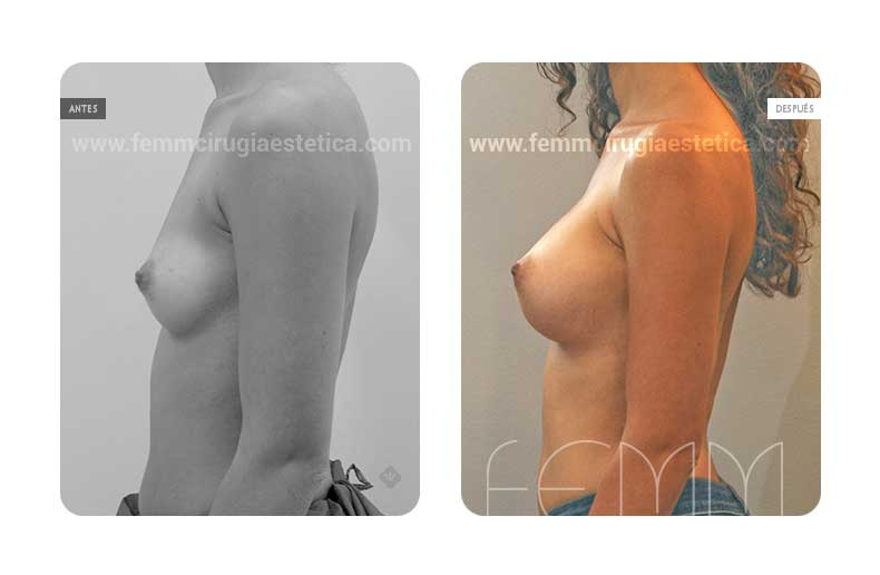 Aumento de pecho con prótesis anatómicas de 375cc · Caso 52 - Fotografía 2