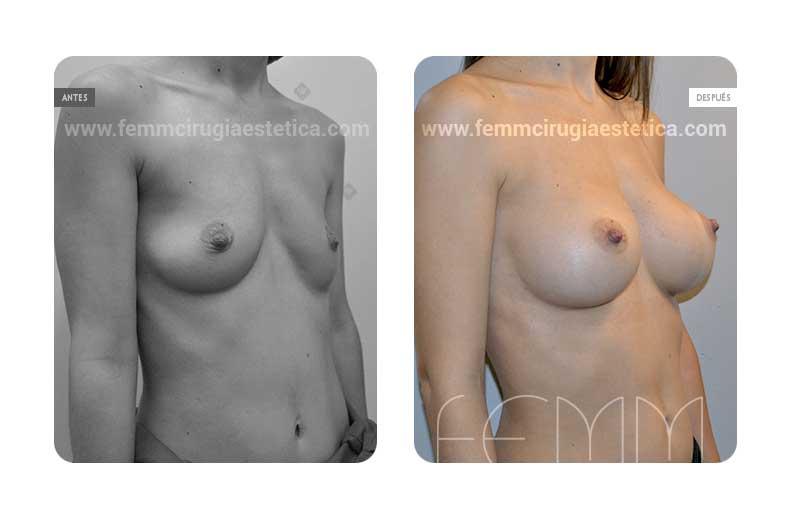 Asimetría mamaria y aumento de pecho con prótesis 320 cc · Caso 5 - Fotografía 1