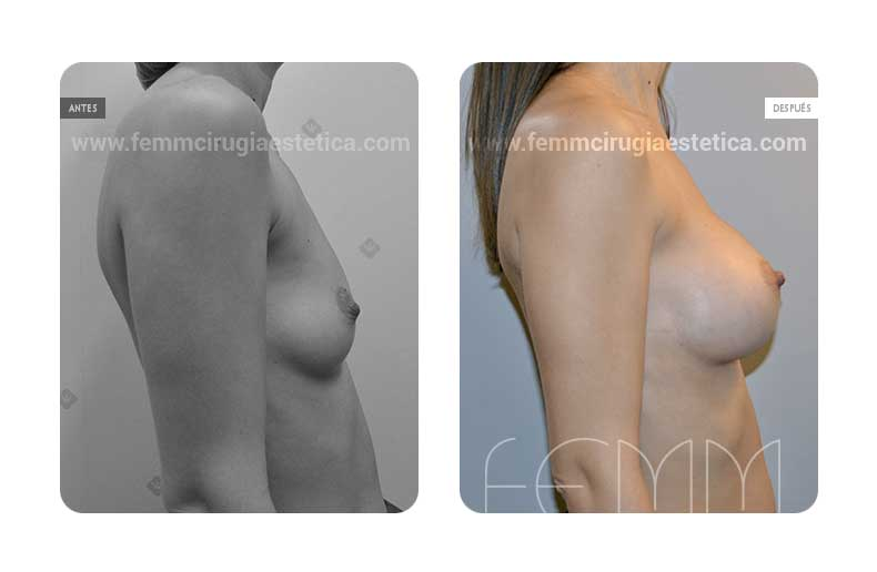 Asimetría mamaria y aumento de pecho con prótesis 320 cc · Caso 5 - Fotografía 2