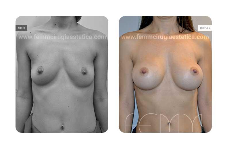 Asimetría mamaria y aumento de pecho con prótesis 320 cc · Caso 5 - Fotografía 3