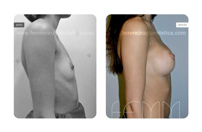 Asimetría mamaria y aumento de pecho con prótesis 290 cc · Caso 6 - Fotografía 2