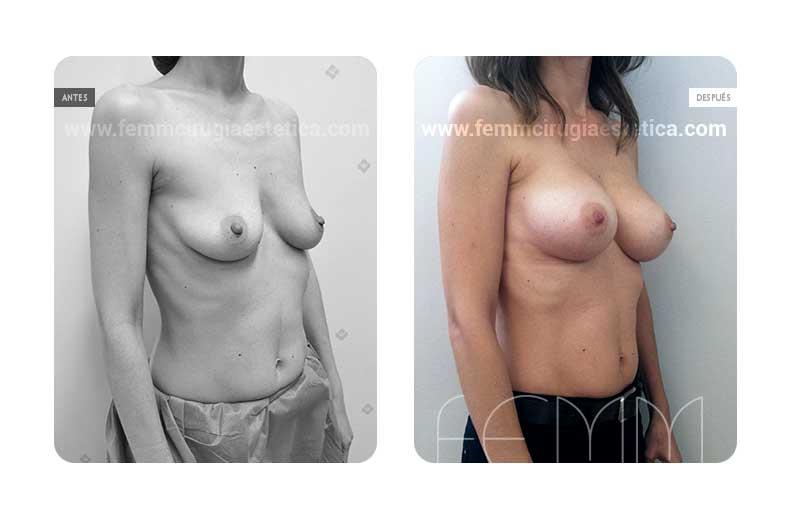 Aumento de pecho con prótesis anatómicas de 290cc · Caso 54 - Fotografía 1