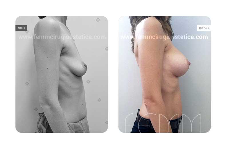 Aumento de pecho con prótesis anatómicas de 290cc · Caso 54 - Fotografía 2