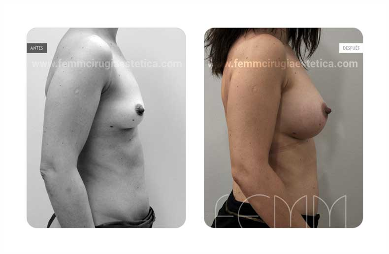 Aumento de pecho con prótesis anatómicas de 370cc · Caso 55 - Fotografía 4