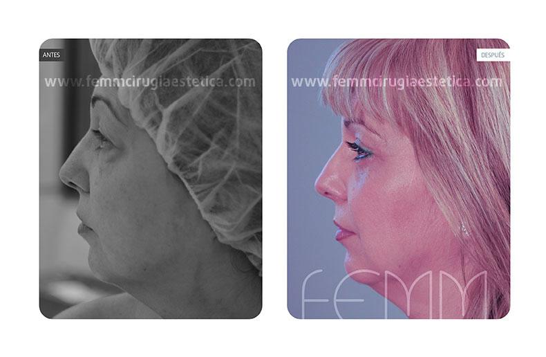 Blefaroplastia párpados inferiores-superiores · Caso 2 - Fotografía 1
