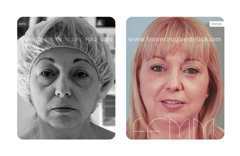 Blefaroplastia párpados inferiores-superiores · Caso 2 - Fotografía 2