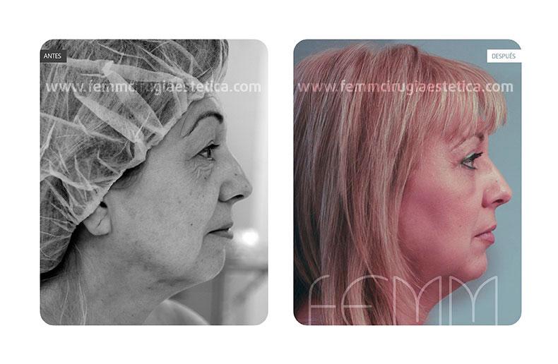 Blefaroplastia párpados inferiores-superiores · Caso 2 - Fotografía 3