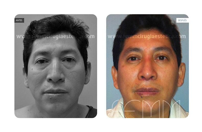 Blefaroplastia párpados inferiores-superiores · Caso 4 - Fotografía 1