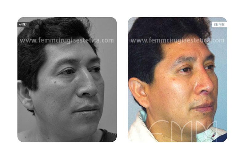 Blefaroplastia párpados inferiores-superiores · Caso 4 - Fotografía 2
