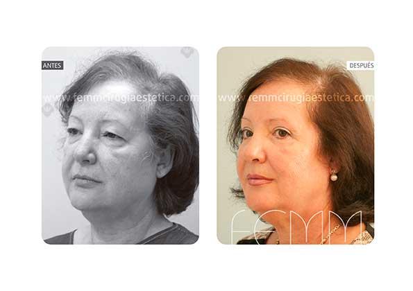 Blefaroplastia de los párpados superiores · Caso 5 - Fotografía 2