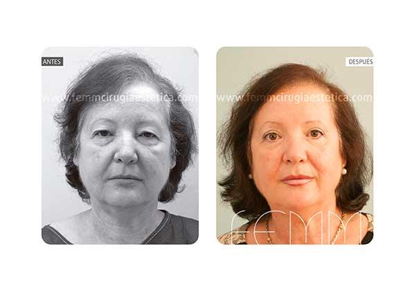 Blefaroplastia de los párpados superiores · Caso 5 - Fotografía 3