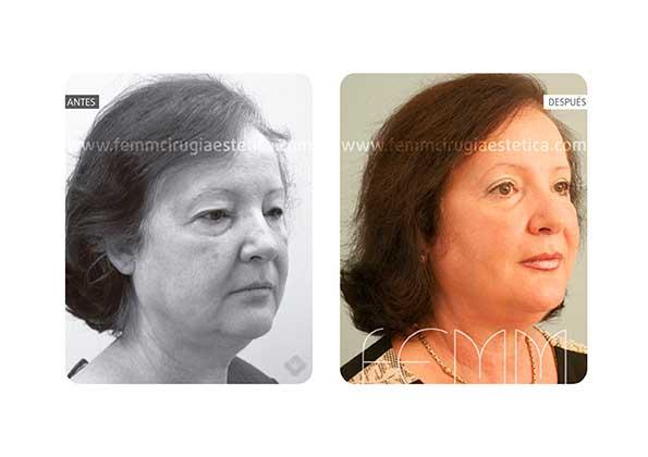 Blefaroplastia de los párpados superiores · Caso 5 - Fotografía 4