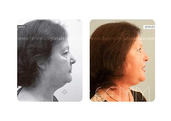Blefaroplastia de los párpados superiores · Caso 5 - Fotografía 5