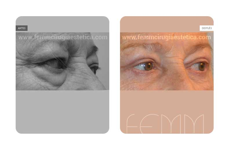 Blefaroplastia párpados inferiores-superiores · Caso 6 - Fotografía 1