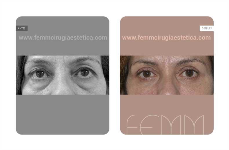 Blefaroplastia y Lipofilling de párpados · Caso 11 - Fotografía 1