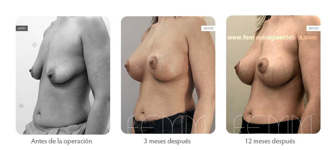 Elevación de pecho con prótesis anatómicas · Caso 6 - Fotografía 1