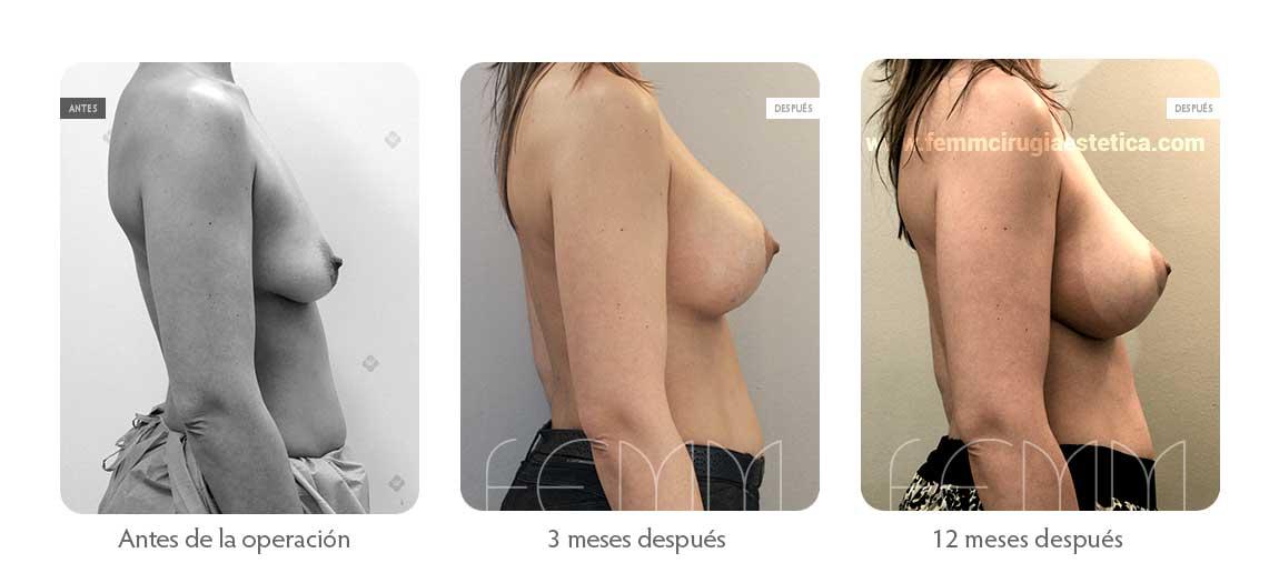 Elevación de pecho con prótesis anatómicas · Caso 6 - Fotografía 2