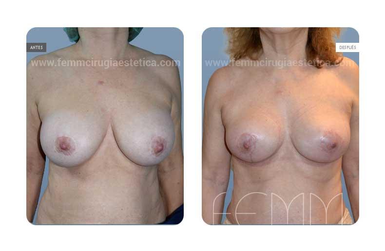 Explantación de implantes mamarios · Caso 1 - Fotografía 1