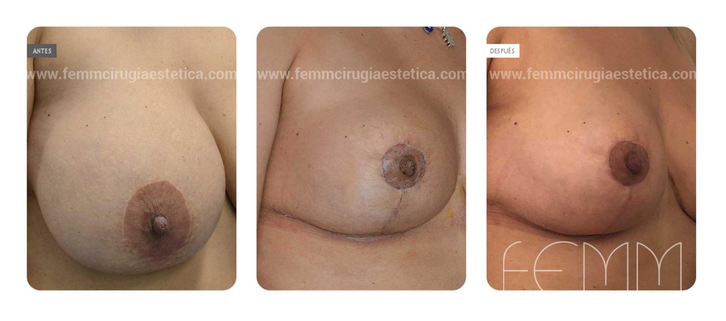 Explantación de implantes mamarios · Caso 3 - Fotografía 1