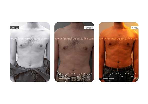 Ginecomastia y lipoescultura · Caso 4 - Fotografía 3