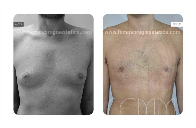 Ginecomastia · Caso 10 - Fotografía 1
