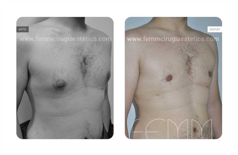 Ginecomastia · Caso 11 - Fotografía 1