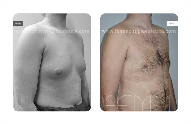 Ginecomastia · Caso 14 - Fotografía 1