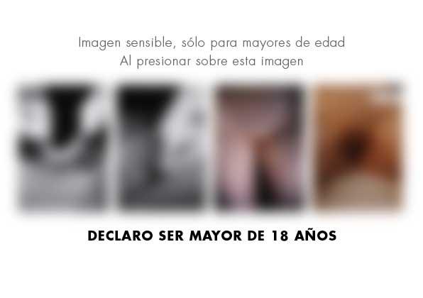 Labioplastia y rejuvenecimiento genital · Caso 1 - Fotografía 2