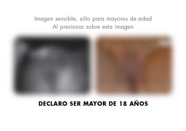 Labioplastia y rejuvenecimiento genital · Caso 2 - Fotografía 1