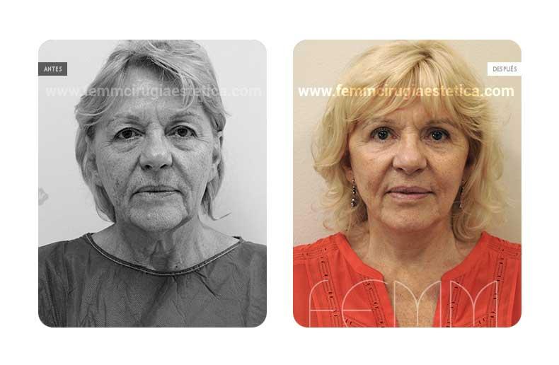 Lipolifting facial y blefaroplastia · Caso 7 - Fotografía 1
