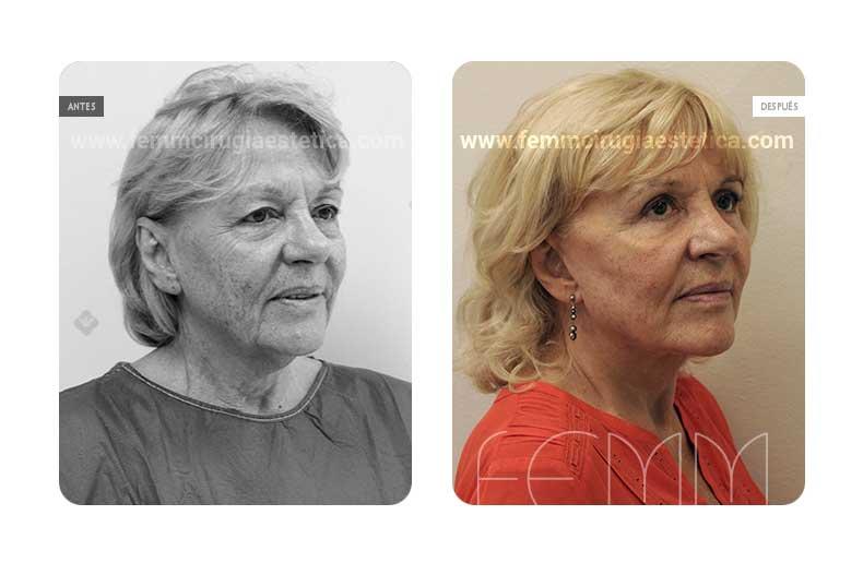 Lipolifting facial y blefaroplastia · Caso 7 - Fotografía 2