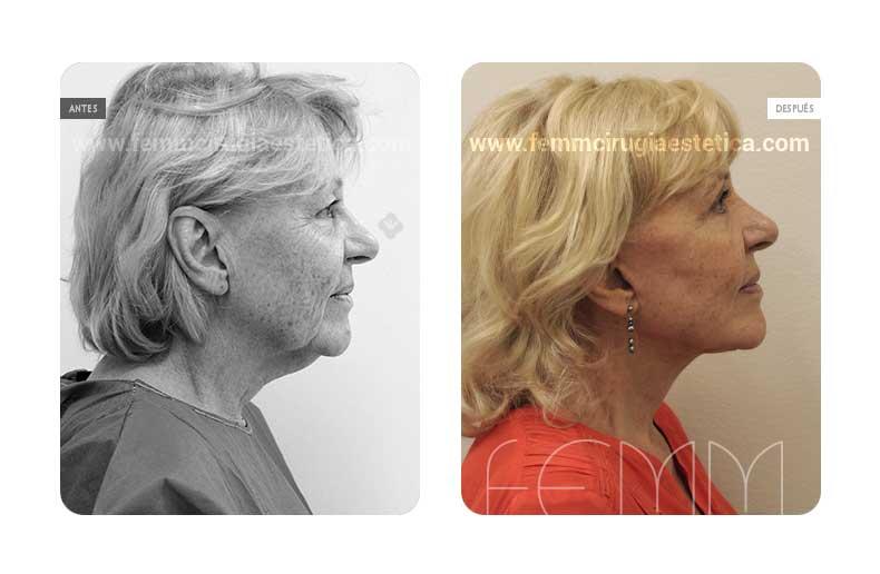 Lipolifting facial y blefaroplastia · Caso 7 - Fotografía 3