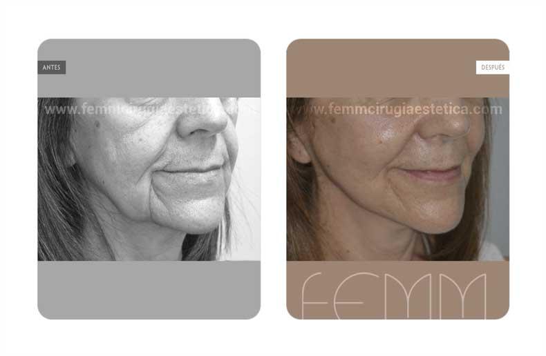 Lifting facial · Caso 2 - Fotografía 1