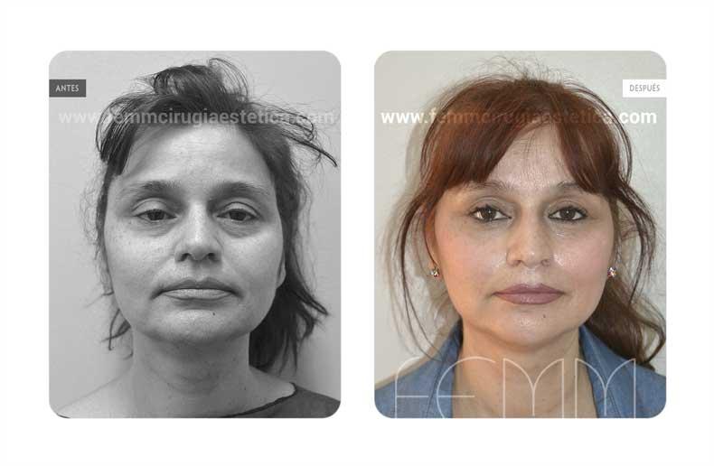 Lifting facial · Caso 3 - Fotografía 1