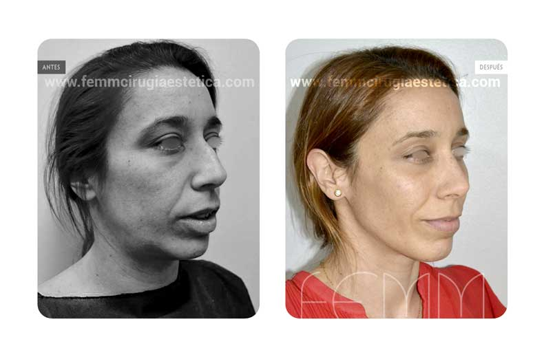 Lipofilling facial · Caso 3 - Fotografía 1