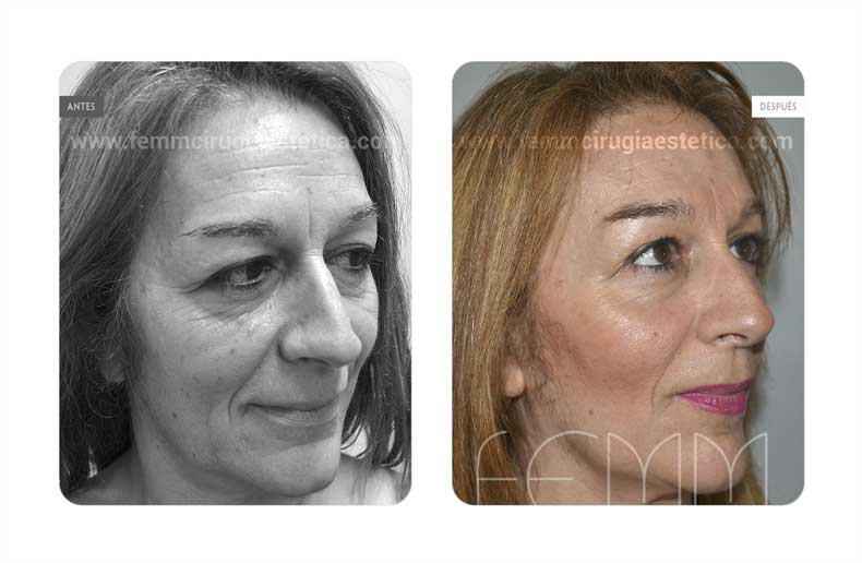 Lipofilling Facial · Caso 7 - Fotografía 1