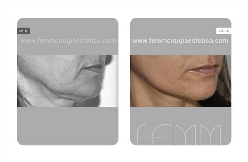 Lipofilling Facial · Caso 11 - Fotografía 1
