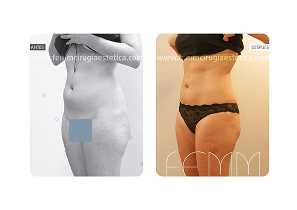 Liposucción de cartucheras, flancos y muslos · Caso 4 - Fotografía 2