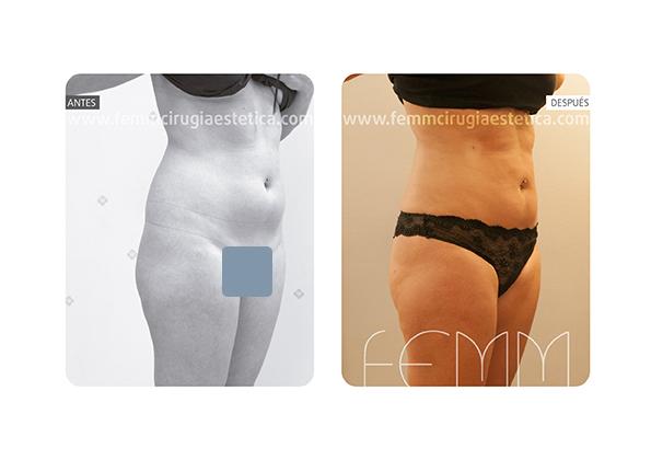 Liposucción de cartucheras, flancos y muslos · Caso 4 - Fotografía 4