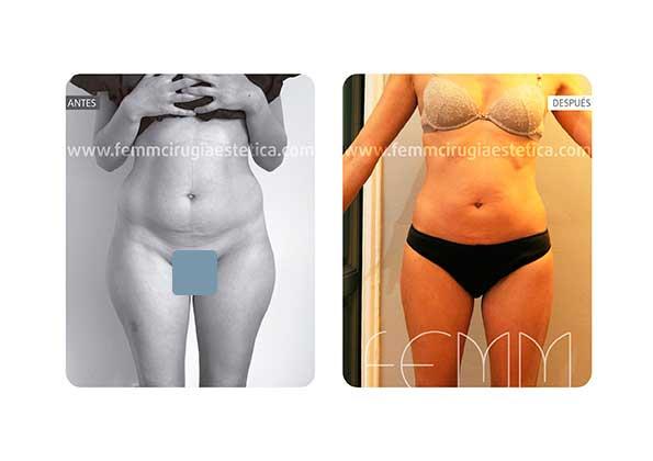 Liposucción de cartucheras, abdomen y muslos · Caso 5 - Fotografía 2