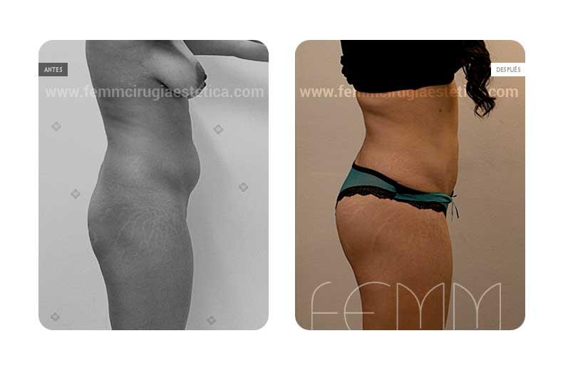 Liposucción-lipoescultura de abdomen · Caso 7 - Fotografía 1