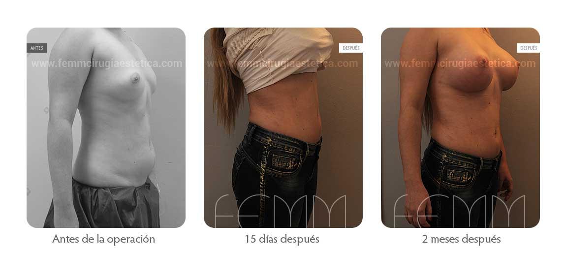 Liposucción y aumento de pecho con prótesis de 500cc · Caso 10 - Fotografía 2