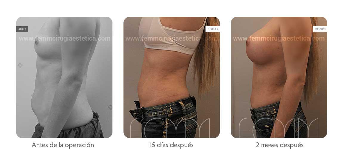 Liposucción y aumento de pecho con prótesis de 500cc · Caso 10 - Fotografía 5