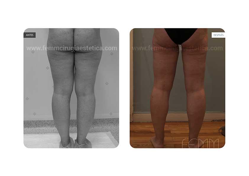 Liposucción de cartucheras, muslos y tobillos · Caso 19 - Fotografía 2
