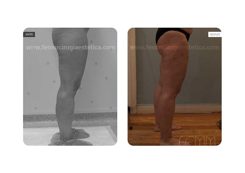 Liposucción de cartucheras, muslos y tobillos · Caso 19 - Fotografía 3
